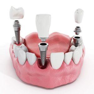 Digital model of dental implants in Carrollton replacing missing teeth.